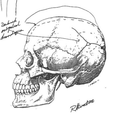 Diagram from Thomas's autopsy showing contusion to left hand side of head—not triangular chip in skull.