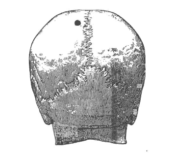 Diagram from Thomas's autopsy show projectile point of entry