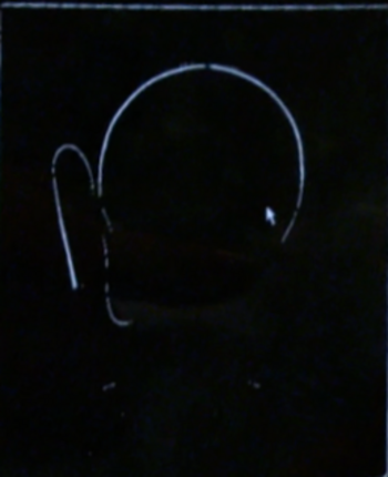 JPEG image x-ray given to Calusinski's defence attorneys prior to trial.
